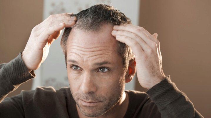 Все о редких волосах у мужчин